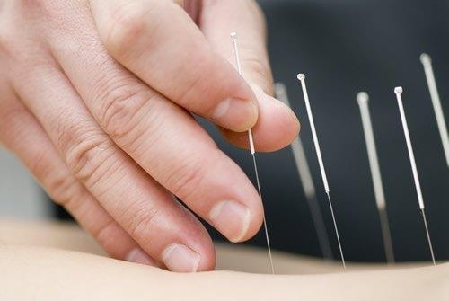 acupuntura málaga