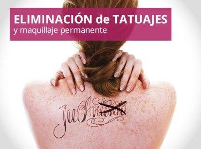 especialidad eliminación de tatuajes